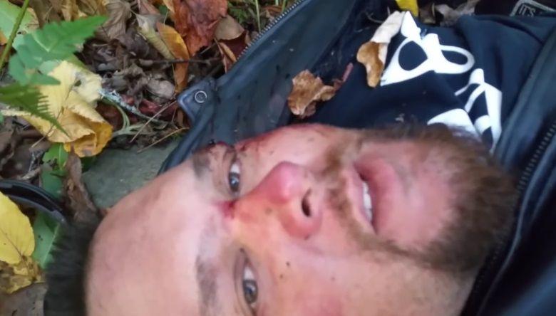 Motociclista sufre un accidente, queda inmóvil y después se graba para despedirse de su familia
